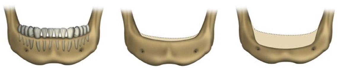 implantaat-alle-tanden