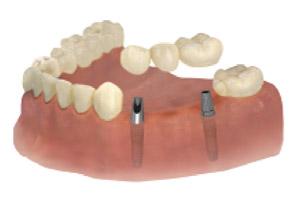 implantaat-tand-brug